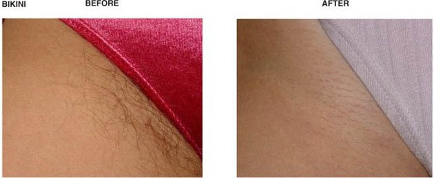 Laser Hair Removal Dr Messore